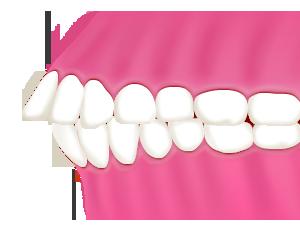 出っ歯|相馬市の菅野歯科医院
