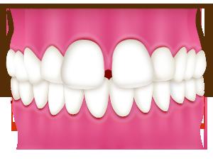 すきっ歯|相馬市の菅野歯科医院