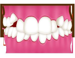 八重歯・叢生|相馬市の菅野歯科医院
