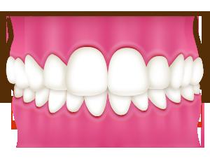過蓋咬合|相馬市の菅野歯科医院