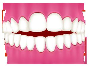開咬|相馬市の菅野歯科医院