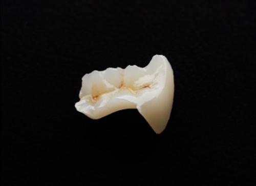 セラミックインレー|相馬市の菅野歯科医院