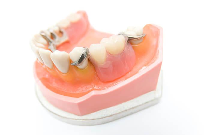 部分入れ歯|相馬市の菅野歯科医院