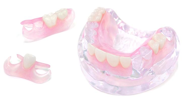 ノンクラスプデンチャー|相馬市の菅野歯科医院